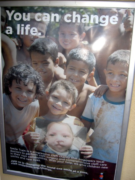 Smile Train is a charity that helps local doctors perform cleft surgery for children around the world.